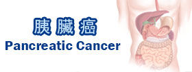 胰臟癌Pancreatic Cancer