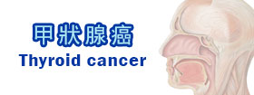 甲狀腺癌Thyroid cancer