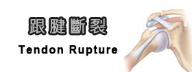跟腱斷裂Tendon Rupture