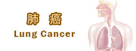 肺癌Lung Cancer