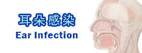 耳朵感染Ear Infection