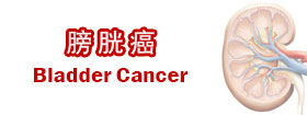 膀胱癌Bladder Cancer
