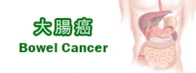 大腸癌Bowel Cancer