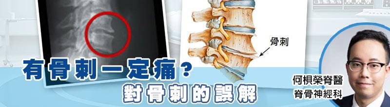 有骨刺一定痛? 對骨刺的誤解