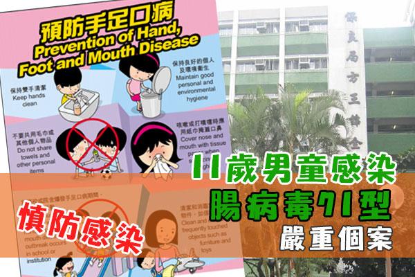 11歲男童腸病毒71型感染嚴重個案